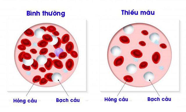 xét nghiệm huyết học là gì